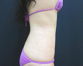 お腹の脂肪吸引1 (術後)横向き