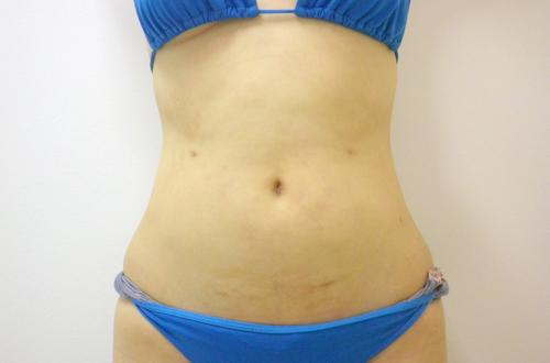 お腹の脂肪吸引3 (術後)正面