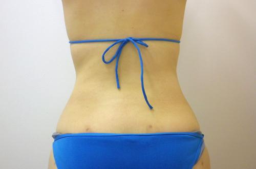 お腹の脂肪吸引3(術後)後面