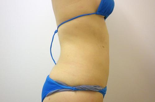 お腹の脂肪吸引3 (術後)横向き
