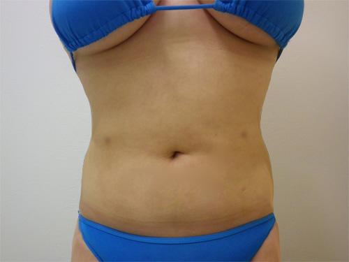 お腹の脂肪吸引4(術後)正面