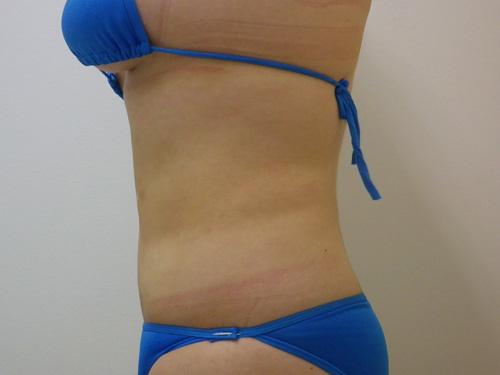お腹の脂肪吸引4(術後)横向き