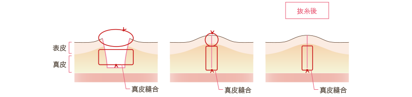 お腹の傷口の縫合の仕方