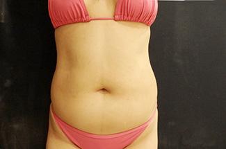 お腹の脂肪吸引2(術前)正面