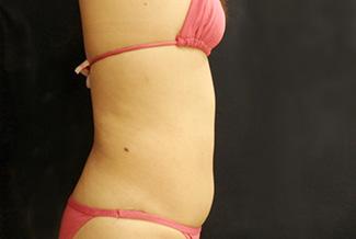 お腹の脂肪吸引2(術前)横向き