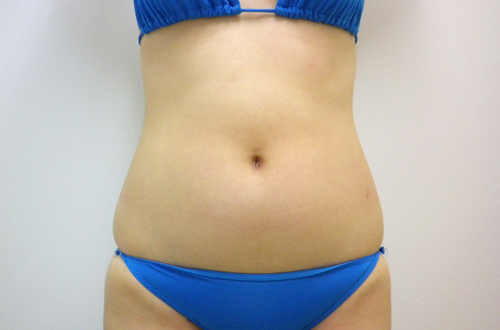 お腹の脂肪吸引3 (術前)正面