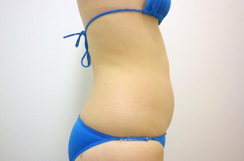 お腹の脂肪吸引3 (術前)横向き