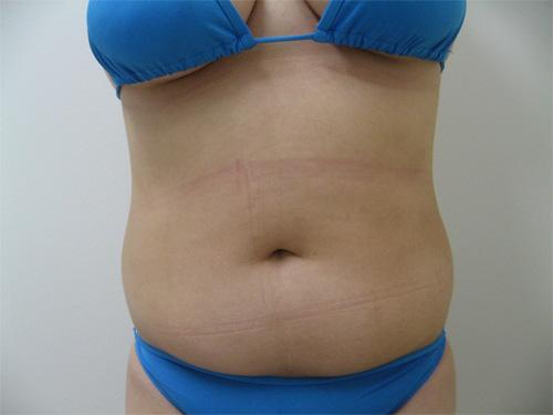 お腹の脂肪吸引4(術前)正面