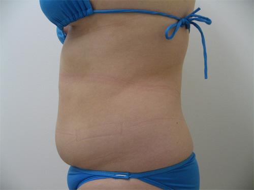 お腹の脂肪吸引4(術前)横向き