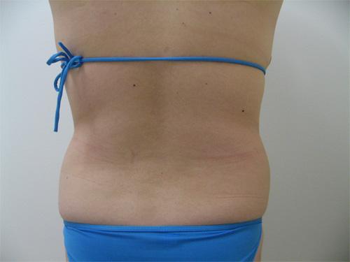 お腹の脂肪吸引4(術前)後面