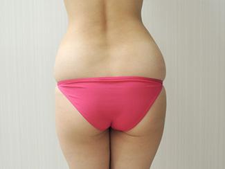 腰の脂肪吸引の吸引部位 説明画像(術前)