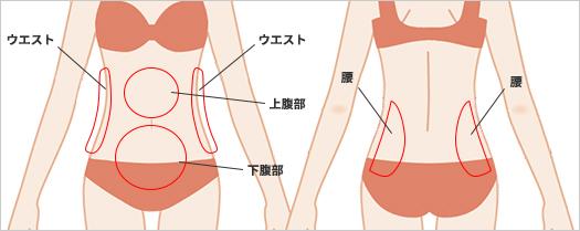 お腹の脂肪吸引の吸引部位