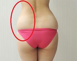 腰の脂肪吸引の吸引部位 説明画像
