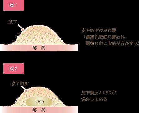 腰の部位別 脂肪の質の違い説明画像2