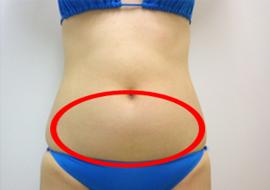 下腹部の脂肪吸引 説明画像