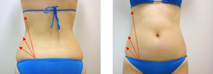 ウエスト部分の脂肪吸引の方向性 説明図
