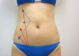 前面部分から吸引を行う際の方向性 説明図