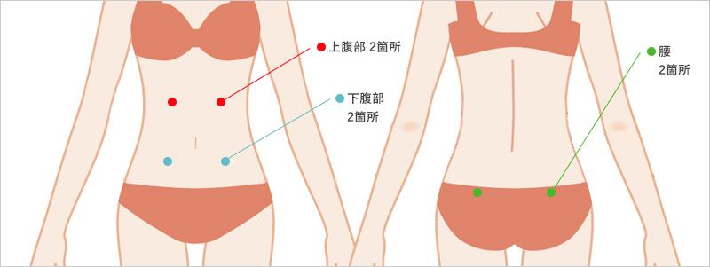 お腹の脂肪吸引の傷口 6箇所