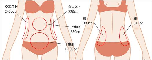 お腹の脂肪吸引の吸引部位2