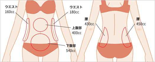 お腹の脂肪吸引の吸引部位3