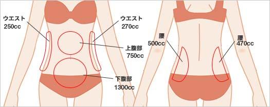 お腹の脂肪吸引の吸引部位4
