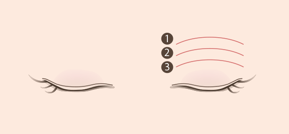 幅の広い二重について説明する図