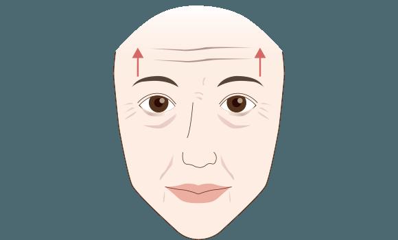 眼瞼下垂とは?解説図2