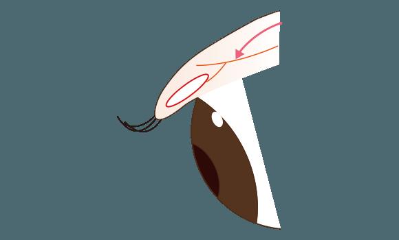後天性の眼瞼下垂のパターン
