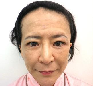 眼瞼下垂の術前から1ヶ月目の症例写真(メイク有)1ヶ月目