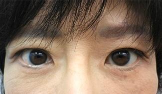 眼瞼下垂の術前から1ヶ月目の症例写真(メイク有)1ヶ月目アップ