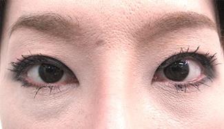 眼瞼下垂の術前から1ヶ月目の症例写真(加齢による目の窪みの修正)1ヶ月目/メイク有/アップ