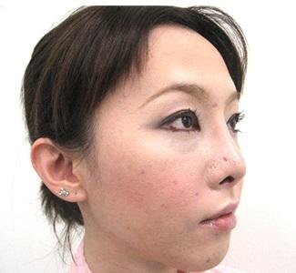 眼瞼下垂の術前から1ヶ月目の症例写真(加齢による目の窪みの修正)1ヶ月目/メイク有/右斜め