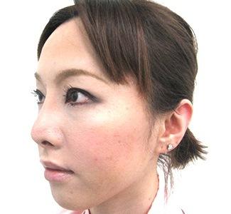 眼瞼下垂の術前から1ヶ月目の症例写真(加齢による目の窪みの修正)1ヶ月目/メイク有/左斜め