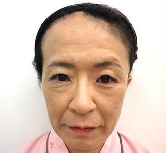 眼瞼下垂の術前から1ヶ月目の症例写真(メイク無)術前