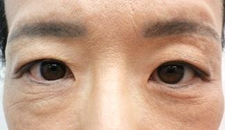 眼瞼下垂の術前から1ヶ月目の症例写真(メイク無)術前アップ