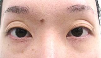 眼瞼下垂の術前から1ヶ月目の症例写真(加齢による目の窪みの修正)術前/メイク無/アップ