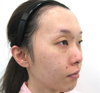 眼瞼下垂の術前から1ヶ月目の症例写真(加齢による目の窪みの修正)術前/メイク無/右斜め