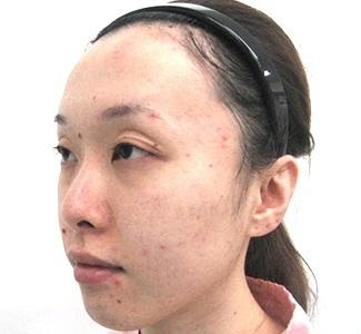 眼瞼下垂の術前から1ヶ月目の症例写真(加齢による目の窪みの修正)術前/メイク無/アップ/左斜め