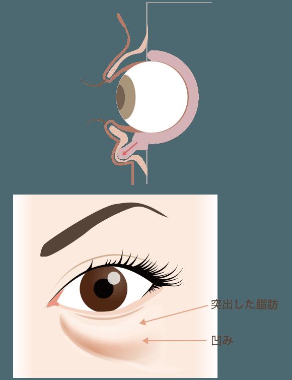 目の下の脂肪除去とは?解説図2