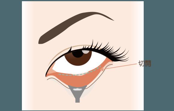目の下の脂肪除去の手術方法