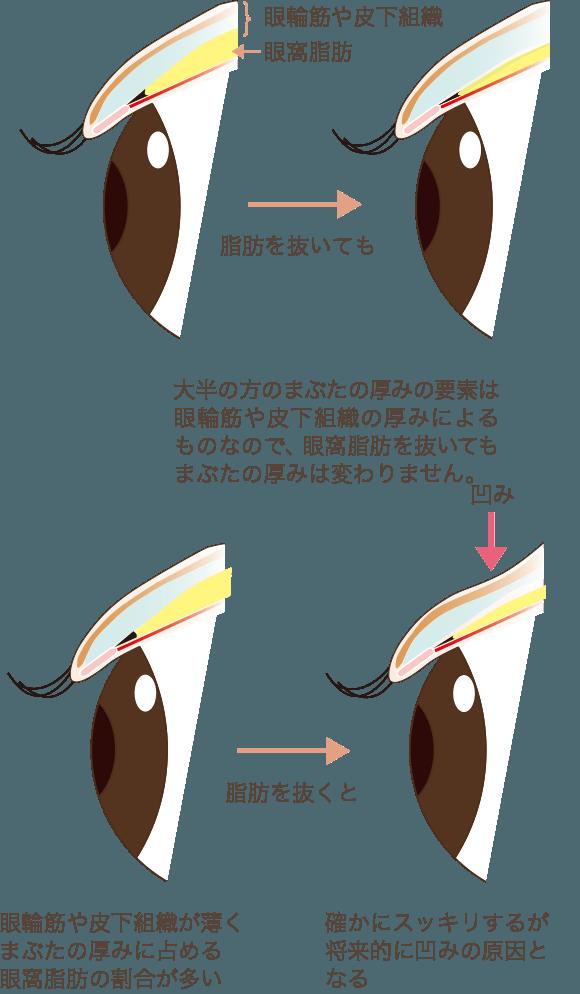 目の上脂肪除去の注意点
