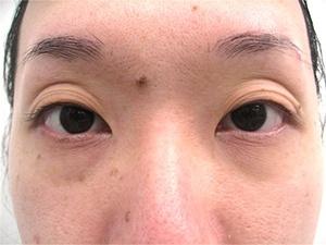 目の上が窪んでいる患者様の図
