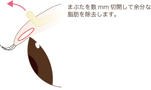 目の上脱脂術の手術方法