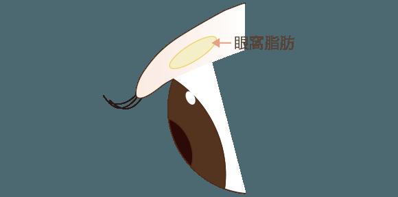 まぶたの浮腫みの原理1