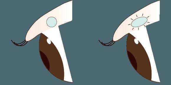 まぶたの浮腫みの原理4