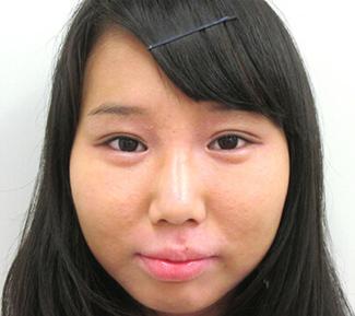 涙袋のヒアルロン酸注入の症例写真1(術後)
