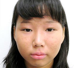 涙袋のヒアルロン酸注入の症例写真1(術前)