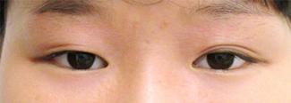 涙袋のヒアルロン酸注入の症例写真1(術前)アップ