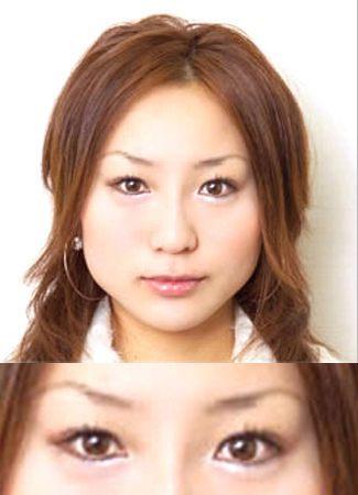 涙袋のヒアルロン酸注入の症例写真2(術後)