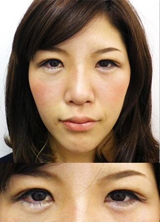 涙袋のヒアルロン酸注入の症例写真3(術後)